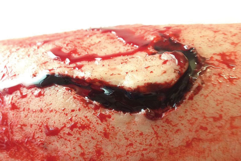 Close-up of deep flesh wound