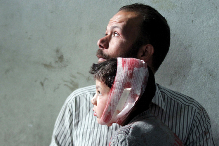 Injured boy with father, Damascus, 2015