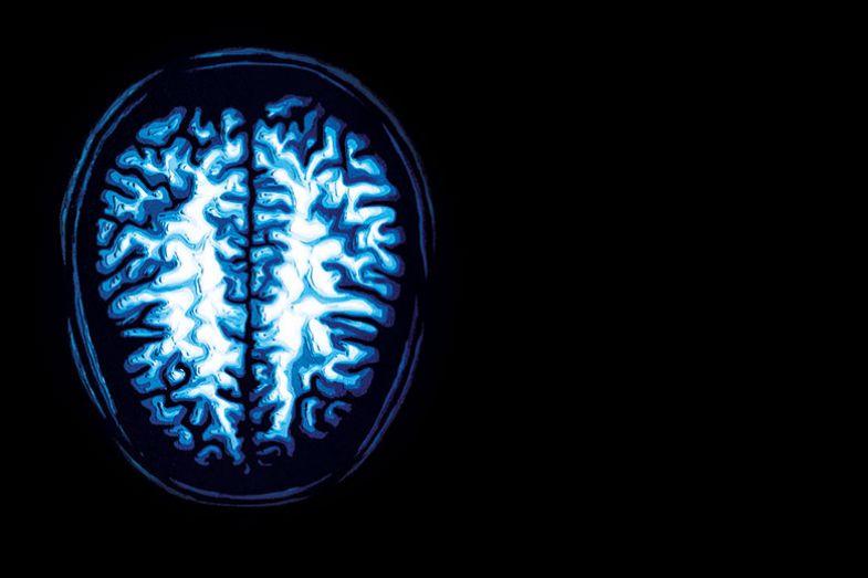 pmu-brain-image
