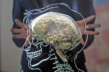 Brain profile