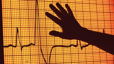 An image from an electrocardiogram