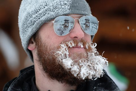 man with frozen beard, Lake Louise, Canada