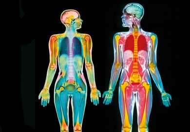 Scan of male and female body