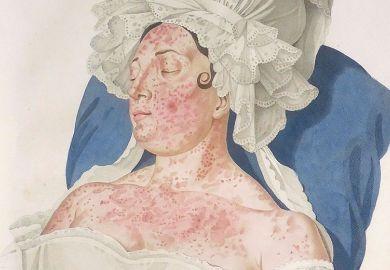skin disease woman