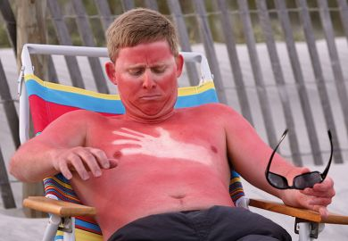 A sunburned man
