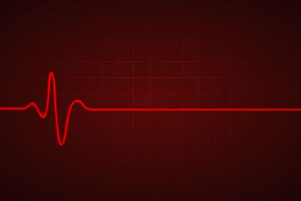 a heartbeat monitor